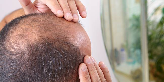 Most Common Reasons For Hairloss