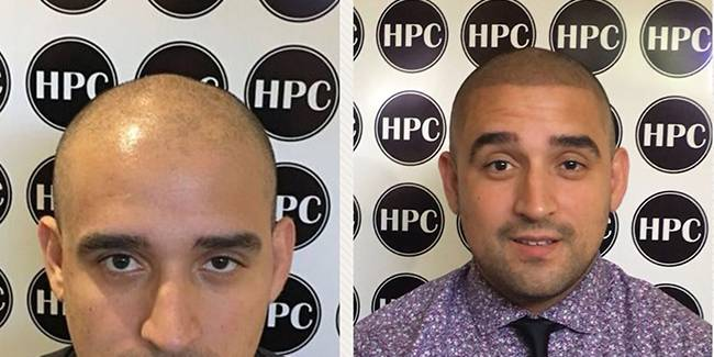 Receding Hairline Treatment by HPC