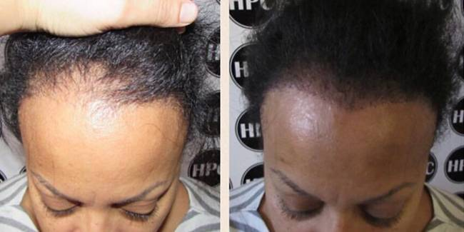Scalp Pigmentation Instead of Hair Transplant Surgery