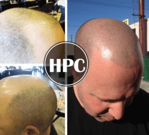 Hair Pigmentation