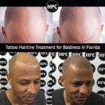 Complete Baldness Solutions With Scalp Micro Pigmentation