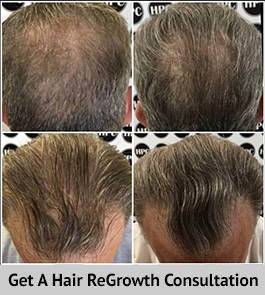 Scalp MicroPigmentation Weston, Florida